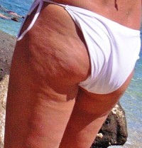 woman with cellulite on legs and bum